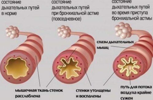 Степени бронхиальной астмы