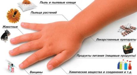 Причины аллергической астмы