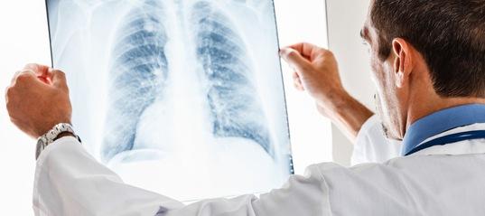 Врач пытается отличить астму от бронхита