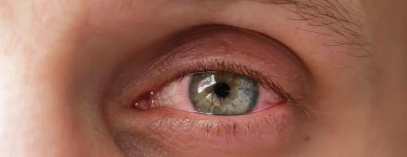 аллергический ринит и конъюнктивит