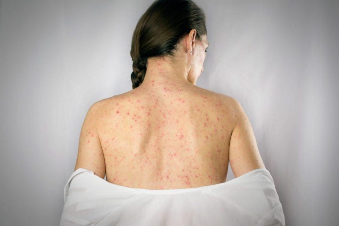 инфекционный мононуклеоз у взрослых