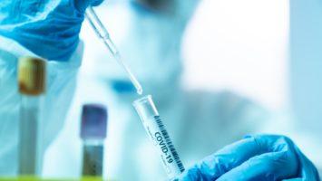 пцр тест на коронавирус