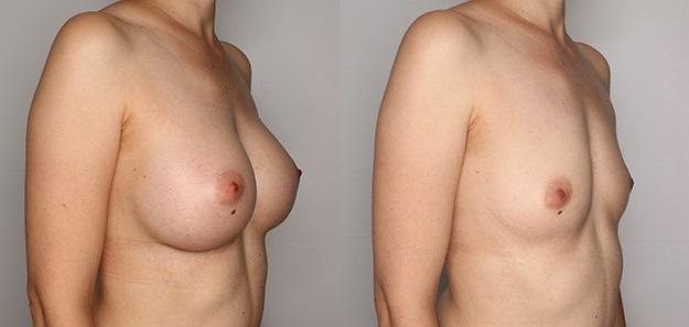 увеличение груди - до и после