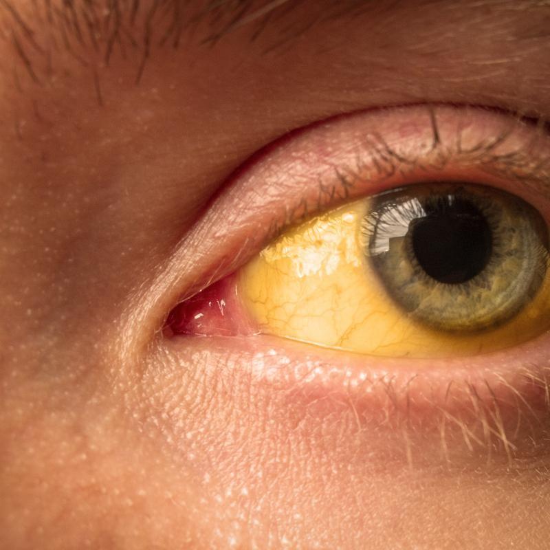 желтуха симптомы